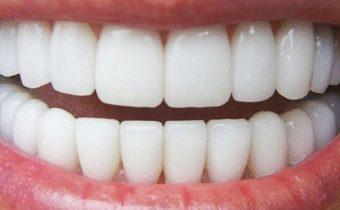 Verloren tand - neptand